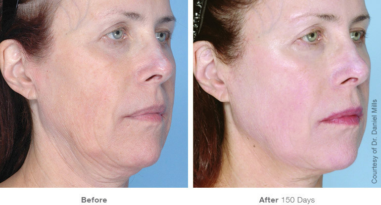 before_after_ultherapy_results_full-face22_v3